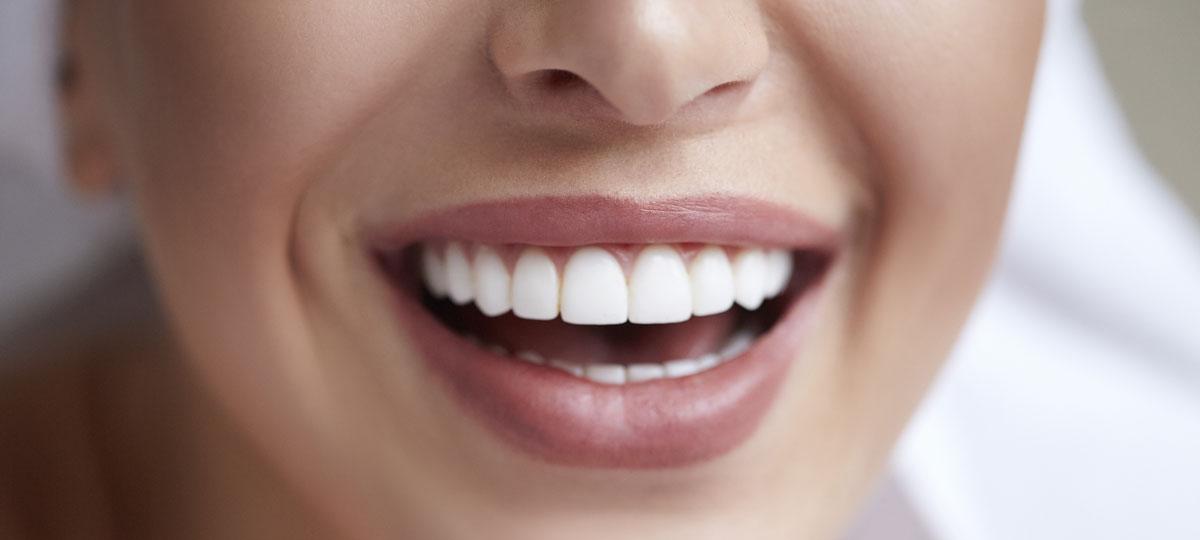 blanchiment dentaire chez le dentiste réussi