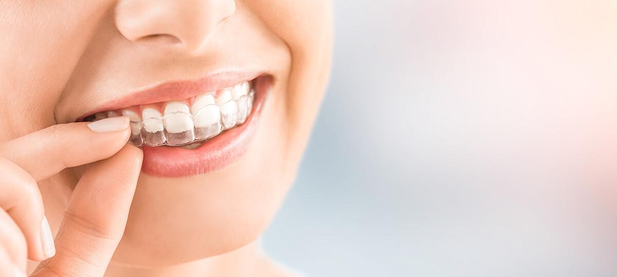 aligneur dentaire invisible mis par une femme