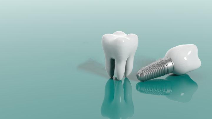 Qu'est-ce que l'implantologie dentaire ?