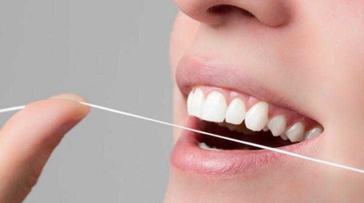 Tout savoir sur le tartre dentaire